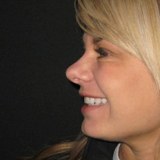 Side shot of client with teeth out smile