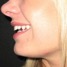 Close up of teeth photo on client facing left