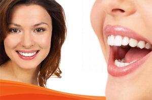 dental-implment