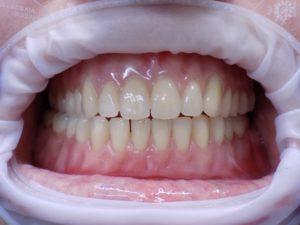 k3-dental-studio-optimal-fit-dentures-sample