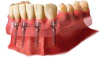 k3cds_overdentures_denture